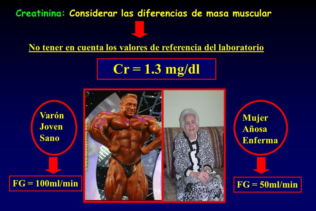 Creatinina: Considerar las diferencias de masa muscular No tener en cuenta los valores de referencia del laboratorio FG = 100ml/min FG = 50ml/min Cr = 1.3 mg/dl Varón Joven Sano Mujer Añosa Enferma