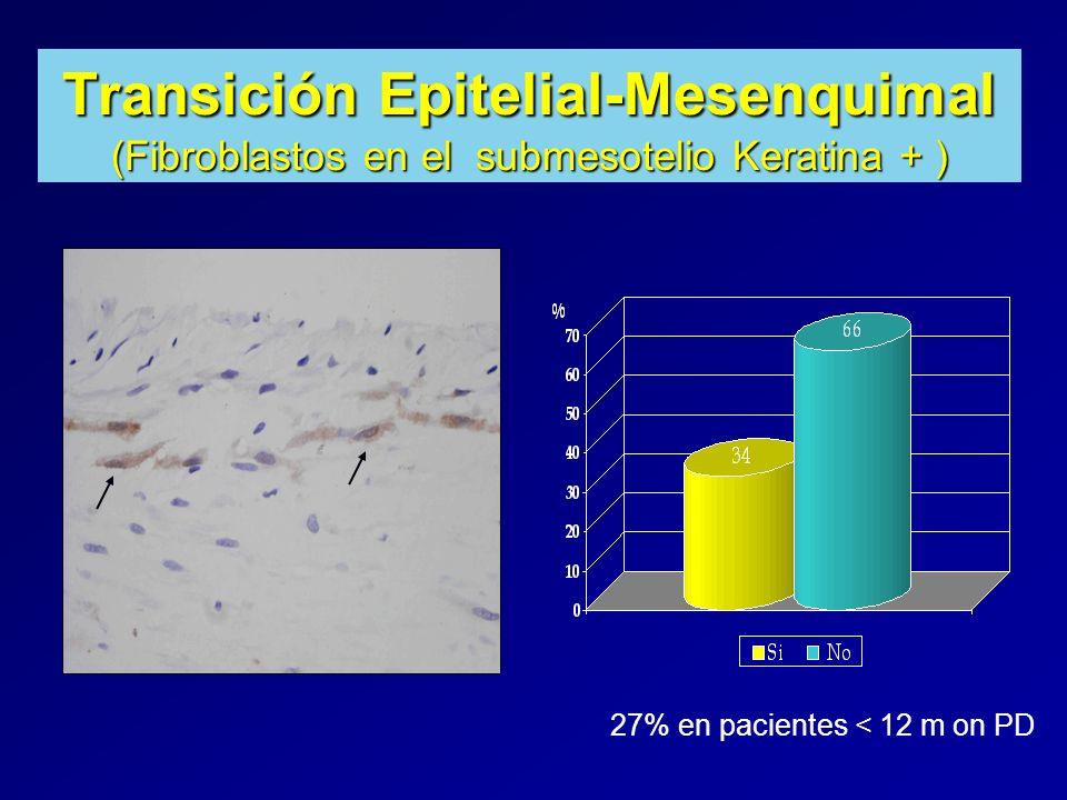 Transición Epitelial-Mesenquimal (Fibroblastos en el submesotelio Keratina + ) 27% en pacientes < 12 m on PD