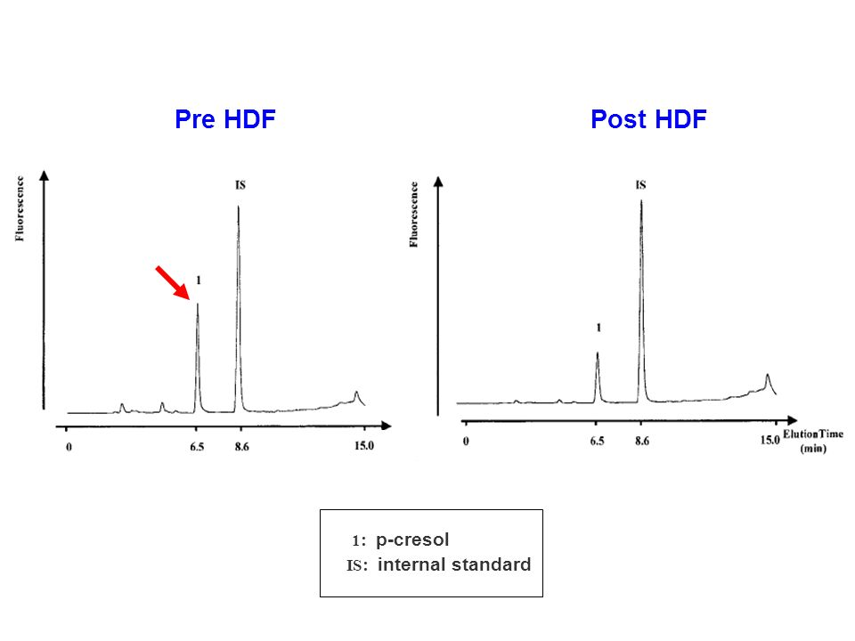 Pre HDF Post HDF 1 : p-cresol IS : internal standard