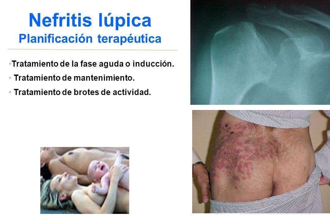 Nefritis lúpica Planificación terapéutica Tratamiento de la fase aguda o inducción. Tratamiento de mantenimiento. Tratamiento de brotes de actividad.
