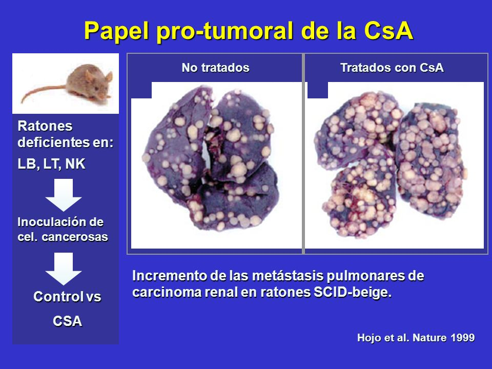 Hojo et al. Nature 1999 Incremento de las metástasis pulmonares de carcinoma renal en ratones SCID-beige. No tratados Tratados con CsA Control vs Cont