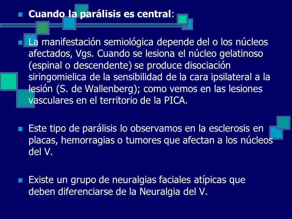 Cuando la parálisis es central: La manifestación semiológica depende del o los núcleos afectados, Vgs. Cuando se lesiona el núcleo gelatinoso (espinal