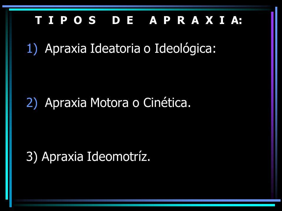 T I P O S D E A P R A X I A: 1)Apraxia Ideatoria o Ideológica: 2)Apraxia Motora o Cinética. 3) Apraxia Ideomotríz.