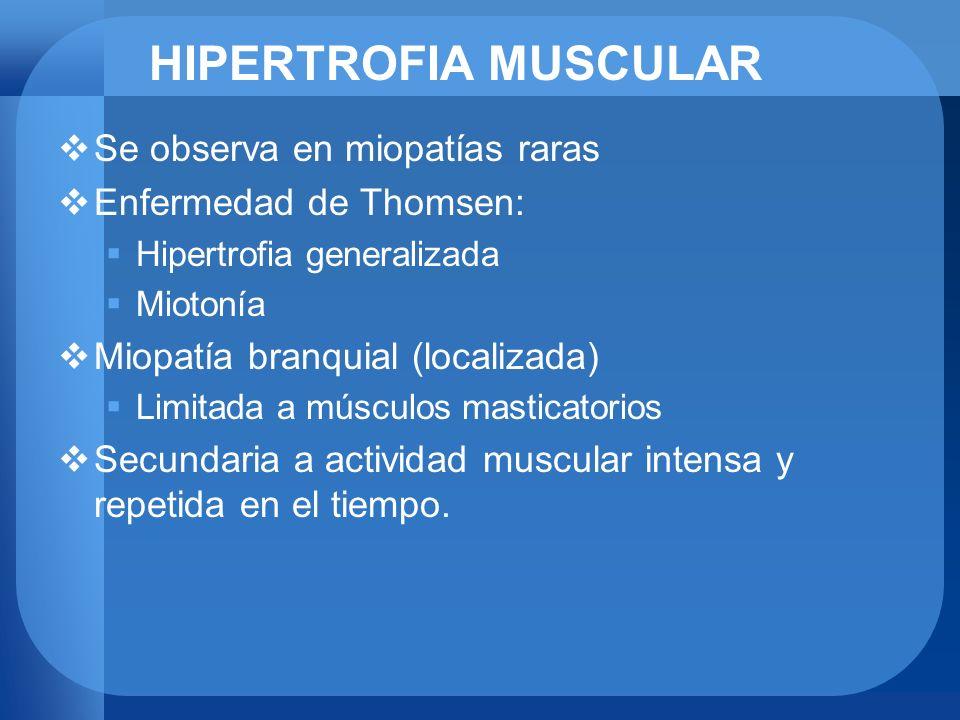 HIPERTROFIA MUSCULAR Se observa en miopatías raras Enfermedad de Thomsen: Hipertrofia generalizada Miotonía Miopatía branquial (localizada) Limitada a