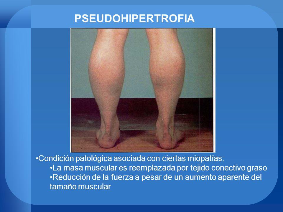 PSEUDOHIPERTROFIA Condición patológica asociada con ciertas miopatías: La masa muscular es reemplazada por tejido conectivo graso Reducción de la fuer