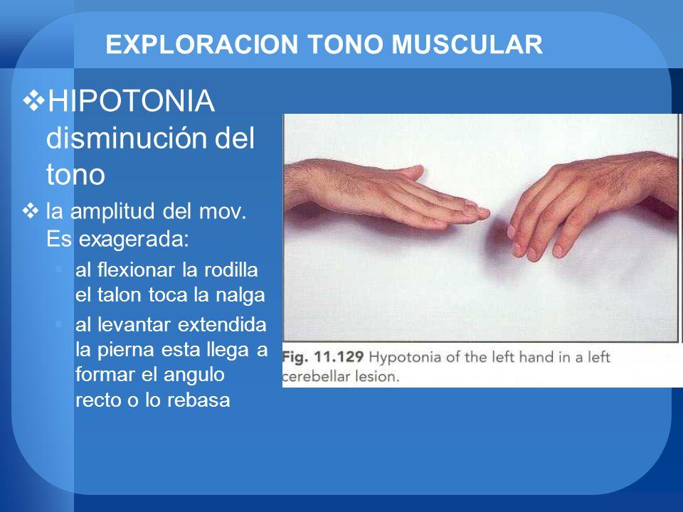 EXPLORACION TONO MUSCULAR HIPOTONIA disminución del tono la amplitud del mov. Es exagerada: al flexionar la rodilla el talon toca la nalga al levantar