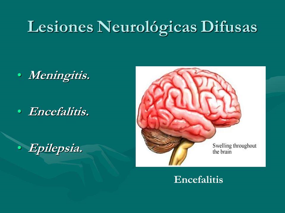 Lesiones Neurológicas Difusas Meningitis.Meningitis. Encefalitis.Encefalitis. Epilepsia.Epilepsia. Encefalitis