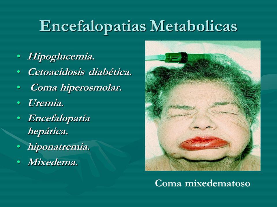 Encefalopatias Metabolicas Hipoglucemia.Hipoglucemia. Cetoacidosis diabética.Cetoacidosis diabética. Coma hiperosmolar. Coma hiperosmolar. Uremia.Urem