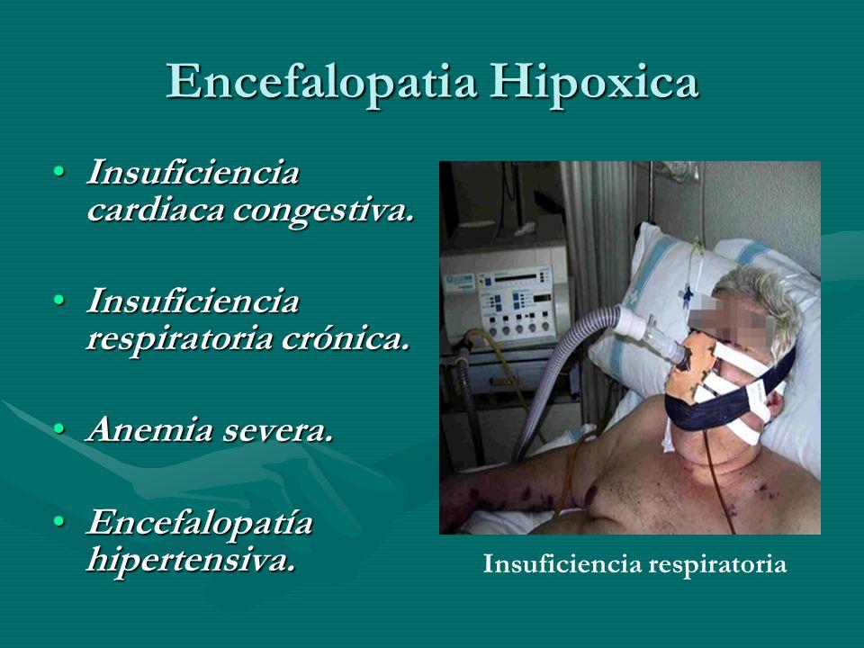 Encefalopatia Hipoxica Insuficiencia cardiaca congestiva.Insuficiencia cardiaca congestiva. Insuficiencia respiratoria crónica.Insuficiencia respirato