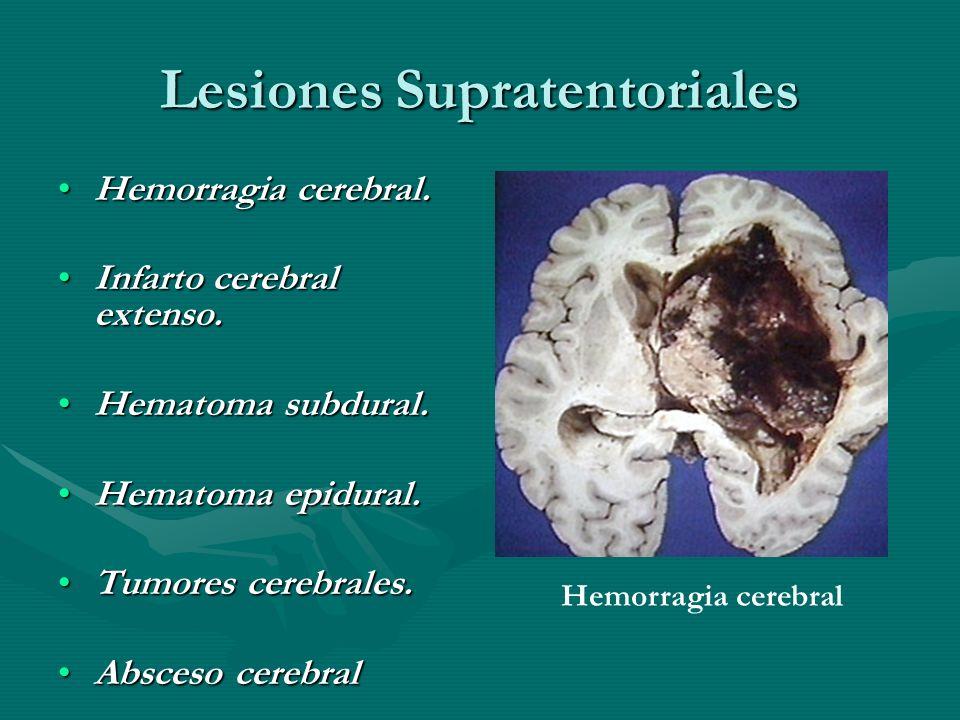 Lesiones Supratentoriales Hemorragia cerebral.Hemorragia cerebral. Infarto cerebral extenso.Infarto cerebral extenso. Hematoma subdural.Hematoma subdu