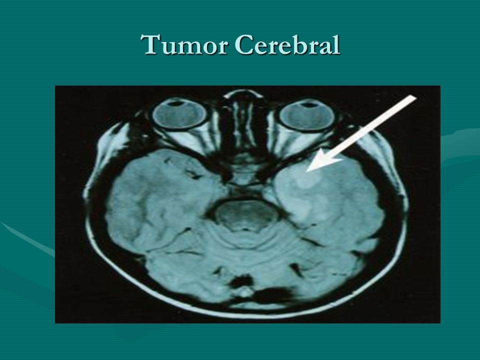 Clasificación del paciente con trauma craneoencefálico TCE Leve....