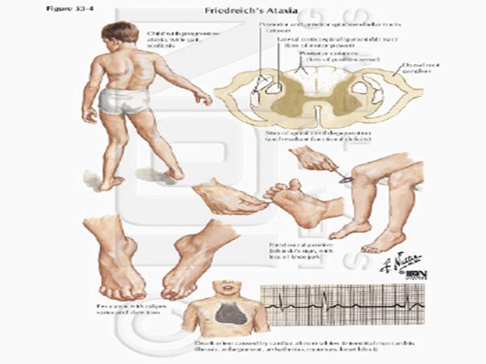 Marcha Hemiplejica o de Todd Caracterizada por triple flexion del miembro superior afectado.