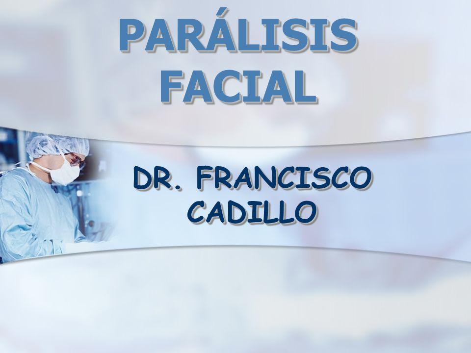 PARÁLISIS FACIAL DR. FRANCISCO CADILLO