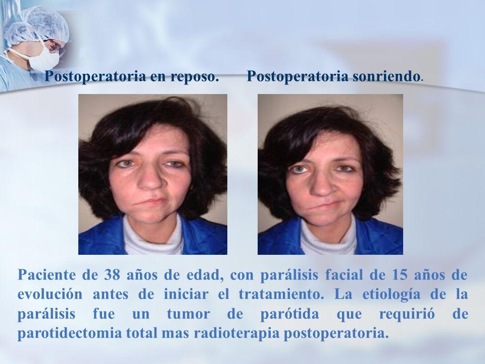 Paciente de 38 años de edad, con parálisis facial de 15 años de evolución antes de iniciar el tratamiento. La etiología de la parálisis fue un tumor d
