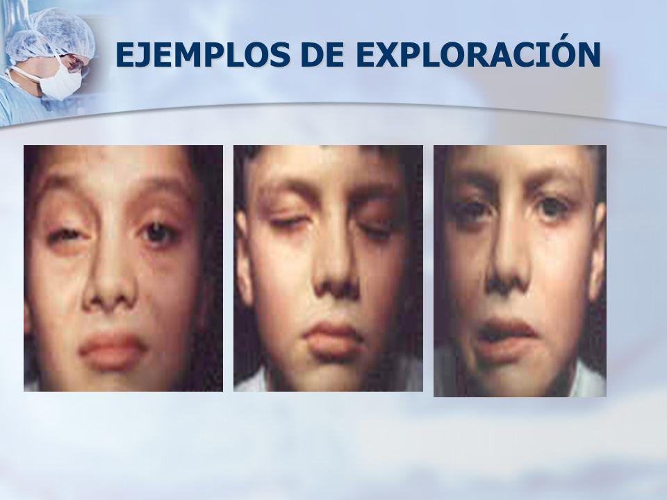 EJEMPLOS DE EXPLORACIÓN