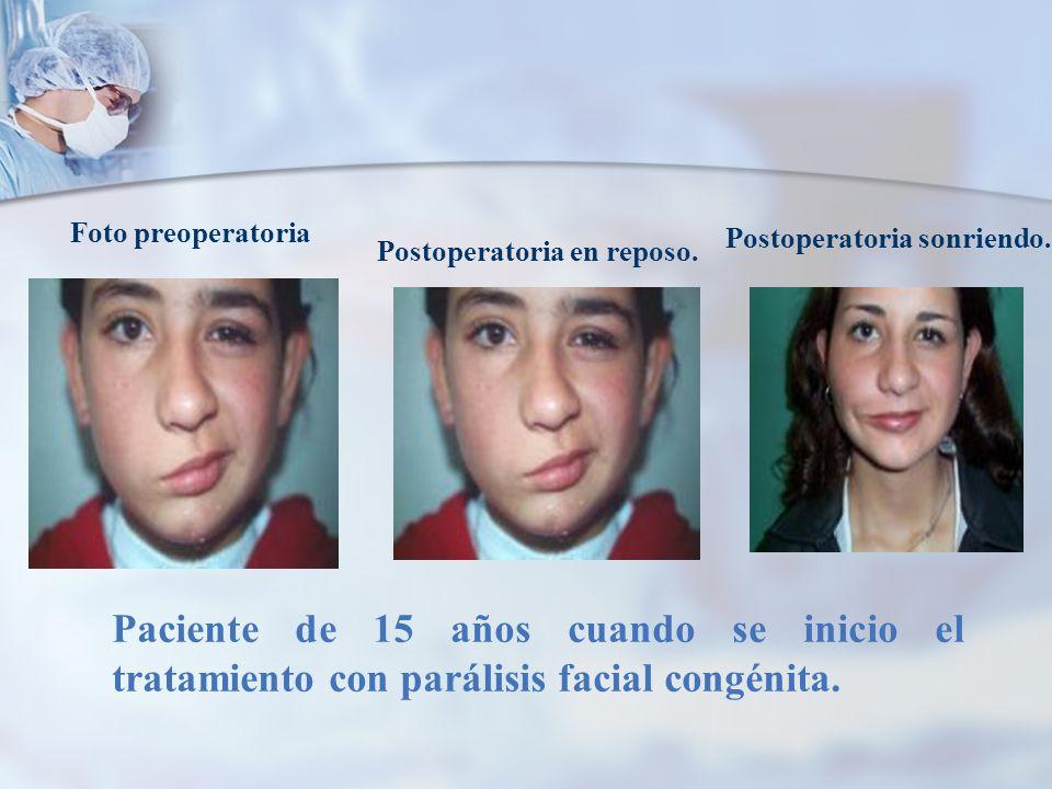 Paciente de 15 años cuando se inicio el tratamiento con parálisis facial congénita. Foto preoperatoria Postoperatoria en reposo. Postoperatoria sonrie