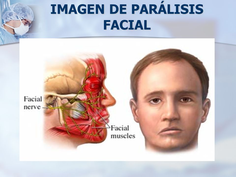 Paciente de 38 años de edad, con parálisis facial de 15 años de evolución antes de iniciar el tratamiento.