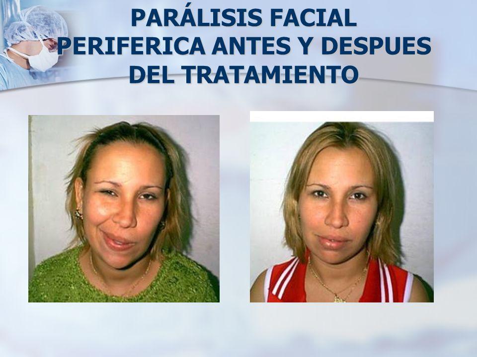 CAUSAS DE LA PARÁLISIS FACIAL DE BELL Diabetes.Diabetes.