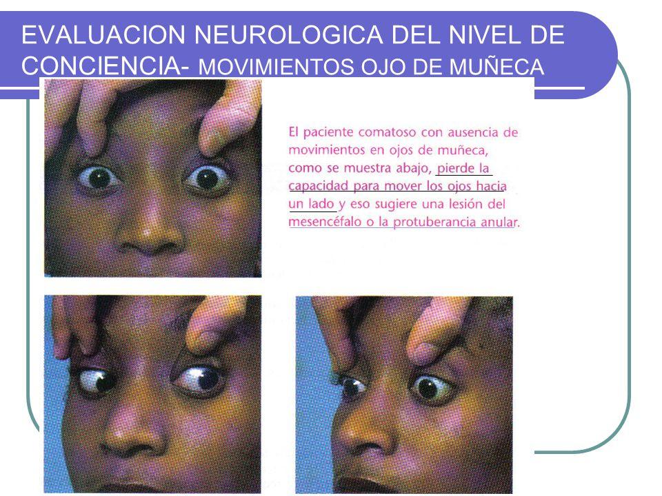 EVALUACION NEUROLOGICA DEL NIVEL DE CONCIENCIA- MOVIMIENTOS OJO DE MUÑECA