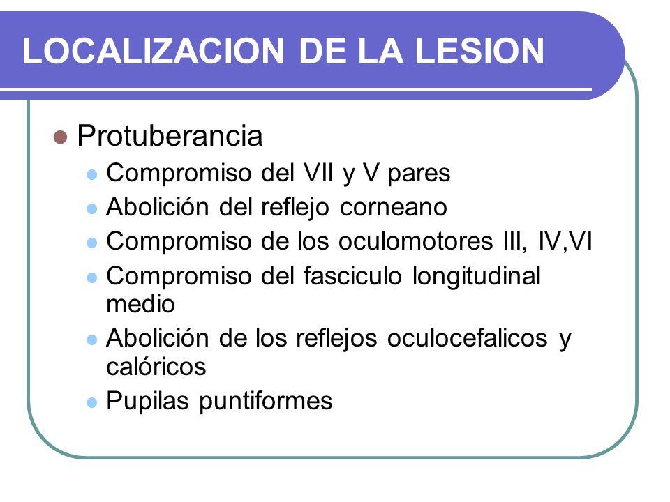 LOCALIZACION DE LA LESION Protuberancia Compromiso del VII y V pares Abolición del reflejo corneano Compromiso de los oculomotores III, IV,VI Compromi