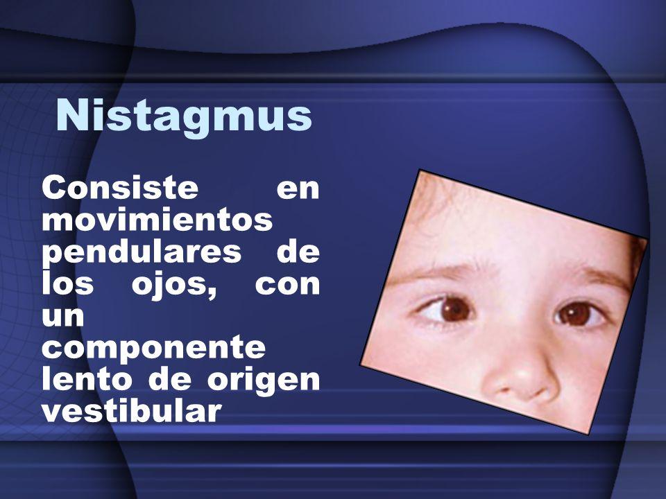 Nistagmus Consiste en movimientos pendulares de los ojos, con un componente lento de origen vestibular