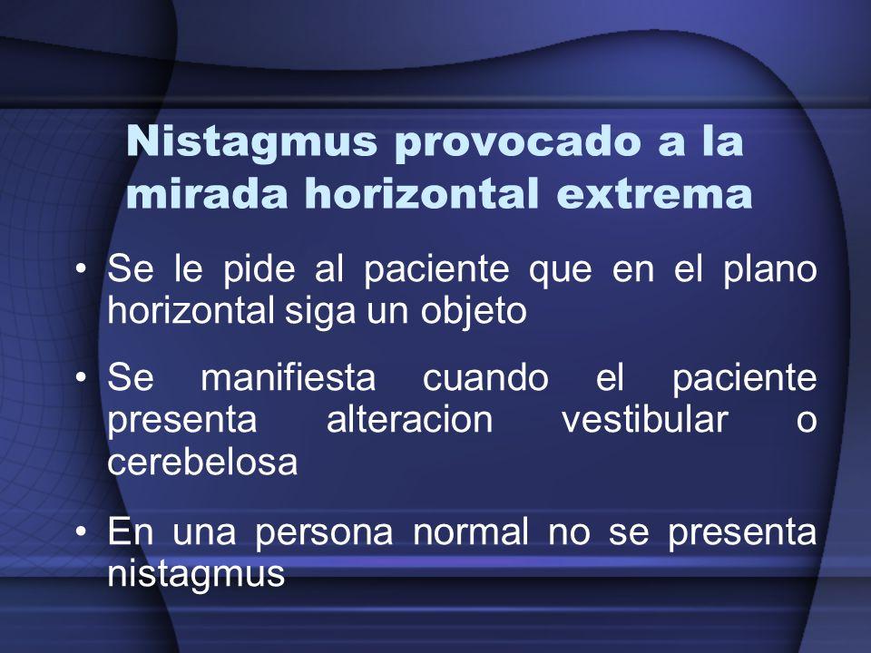 Nistagmus provocado a la mirada horizontal extrema Se le pide al paciente que en el plano horizontal siga un objeto Se manifiesta cuando el paciente p