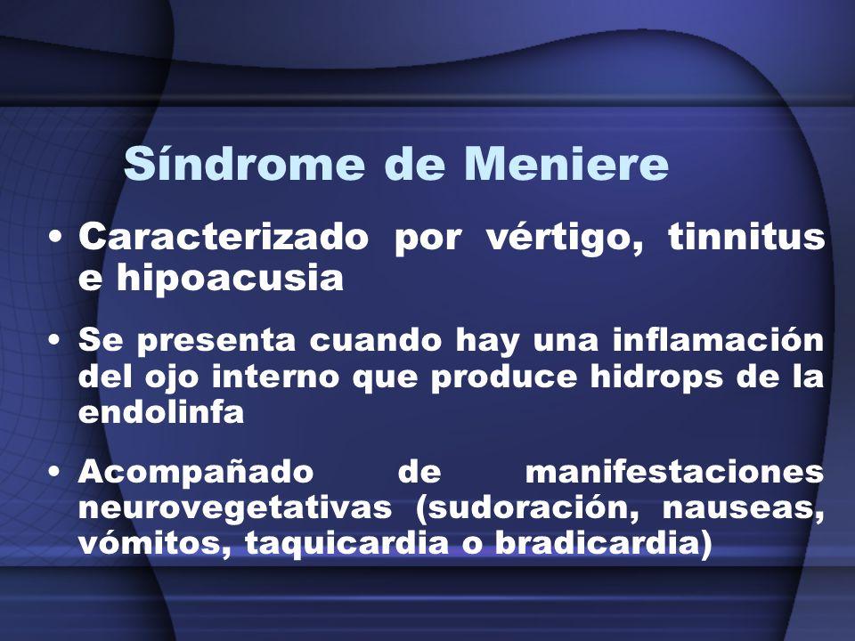 Síndrome de Meniere Caracterizado por vértigo, tinnitus e hipoacusia Se presenta cuando hay una inflamación del ojo interno que produce hidrops de la