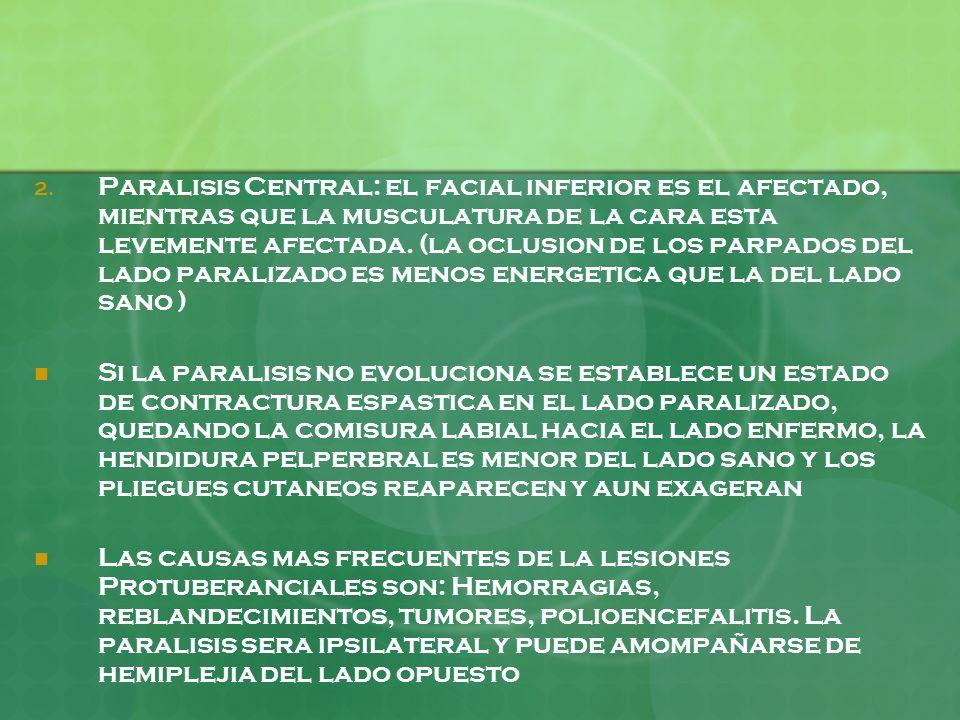 2. Paralisis Central: el facial inferior es el afectado, mientras que la musculatura de la cara esta levemente afectada. (la oclusion de los parpados
