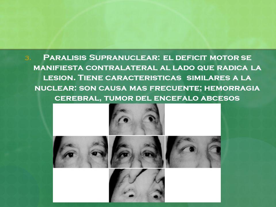 3. Paralisis Supranuclear: el deficit motor se manifiesta contralateral al lado que radica la lesion. Tiene caracteristicas similares a la nuclear: so