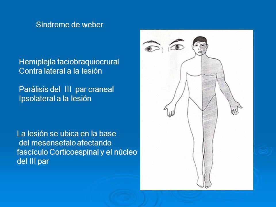 Síndrome de weber Hemiplejía faciobraquiocrural Contra lateral a la lesión Parálisis del III par craneal Ipsolateral a la lesión La lesión se ubica en