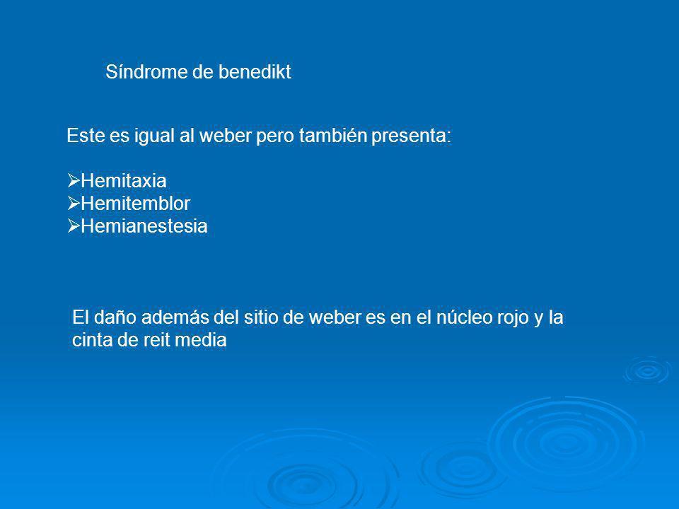 Síndrome de benedikt Este es igual al weber pero también presenta: Hemitaxia Hemitemblor Hemianestesia El daño además del sitio de weber es en el núcl