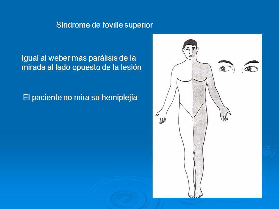 Síndrome de foville superior Igual al weber mas parálisis de la mirada al lado opuesto de la lesión El paciente no mira su hemiplejía