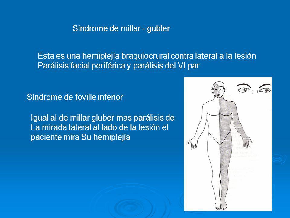 Síndrome de millar - gubler Esta es una hemiplejía braquiocrural contra lateral a la lesión Parálisis facial periférica y parálisis del VI par Síndrom