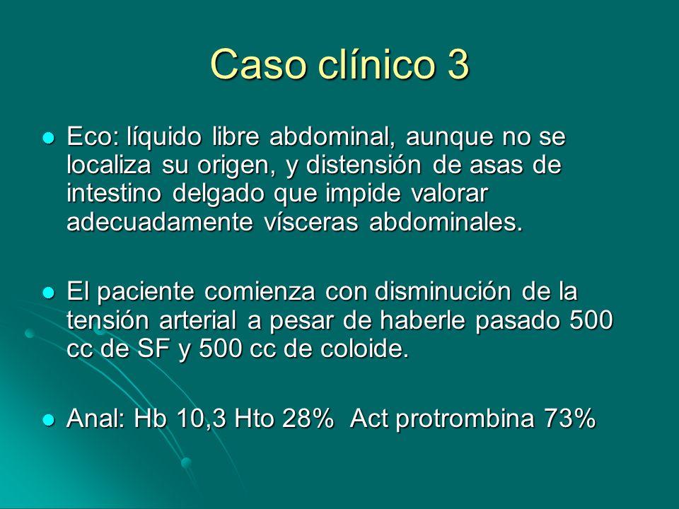Caso clínico 3 Eco: líquido libre abdominal, aunque no se localiza su origen, y distensión de asas de intestino delgado que impide valorar adecuadamente vísceras abdominales.