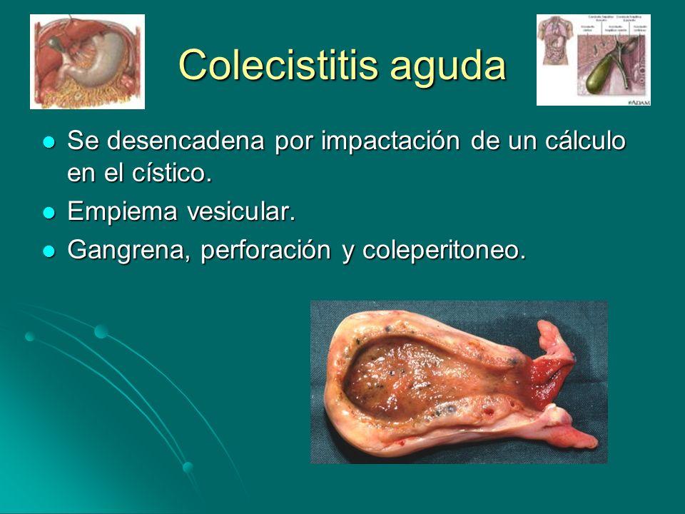 Colecistitis aguda Se desencadena por impactación de un cálculo en el cístico.