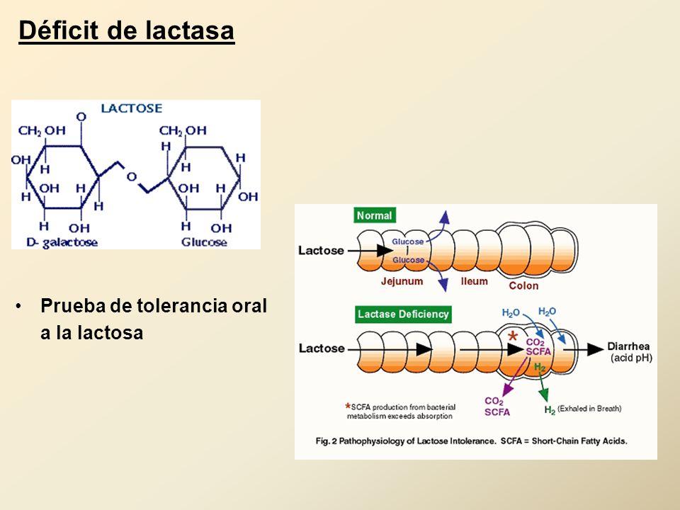 Déficit de lactasa Prueba de tolerancia oral a la lactosa