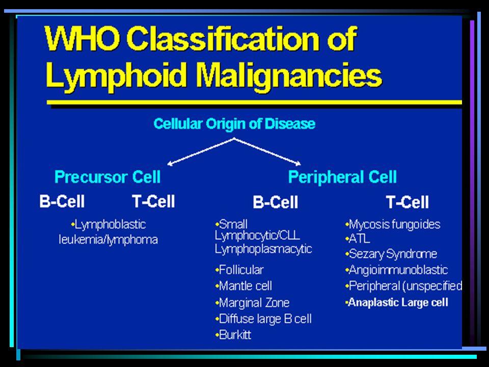 NEOPLASIAS LINFOPROLIFERATIVAS: clasificación REAL 1.I. Trastornos de células plasmáticas: –MGUS –Plasmocitoma –Mieloma Múltiple –Amiloidosis 2.II. Li