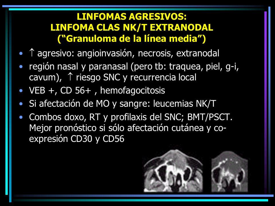 LINFOMAS AGRESIVOS: LINFOMA CLAS T ANGIOINMUNOBLÁSTICO Linfadenopatía angioinmunoblástica con disproteinemia Reordenamientos de TCR Clínica: adenopatí