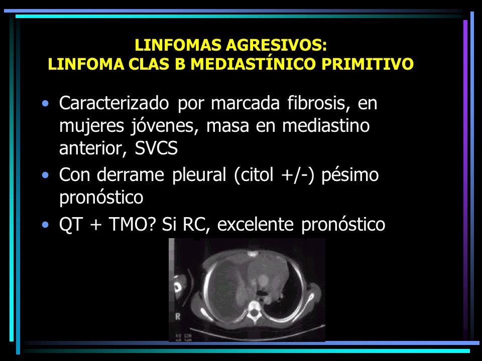 LINFOMAS AGRESIVOS: LINFOMA CLAS T INTESTINAL CON ENTEROPATÍA Intestino delgado de pacientes celiacos Complicaciones frecuentes: perforación, fístulas