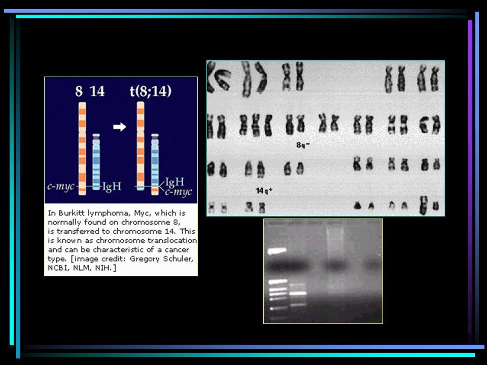 LINFOMAS AGRESIVOS: LINFOMA DE BURKITT/BURKITT LIKE Burkitt: linfoma difuso de células pequeñas no hendidas Burkitt-like: clas B más grandes (igual co