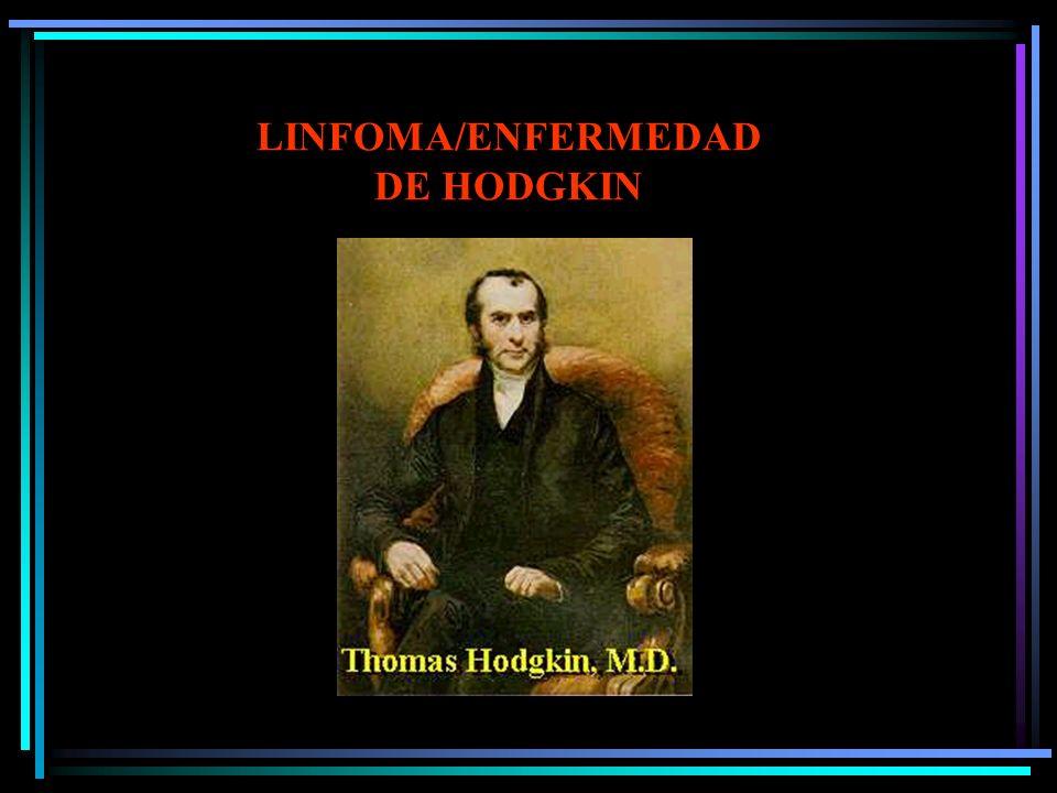 LINFOMAS AGRESIVOS: LINFOMA PRIMARIO DE CAVIDADES En pleura, pericardio o peritoneo, sin masa tumoral Habitualmente HIV+, VH-SK/HV 8 Tratamiento están