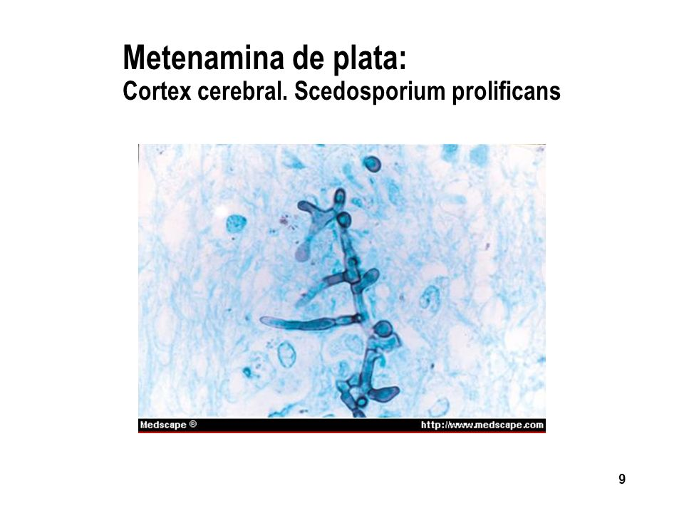 9 Metenamina de plata: Cortex cerebral. Scedosporium prolificans