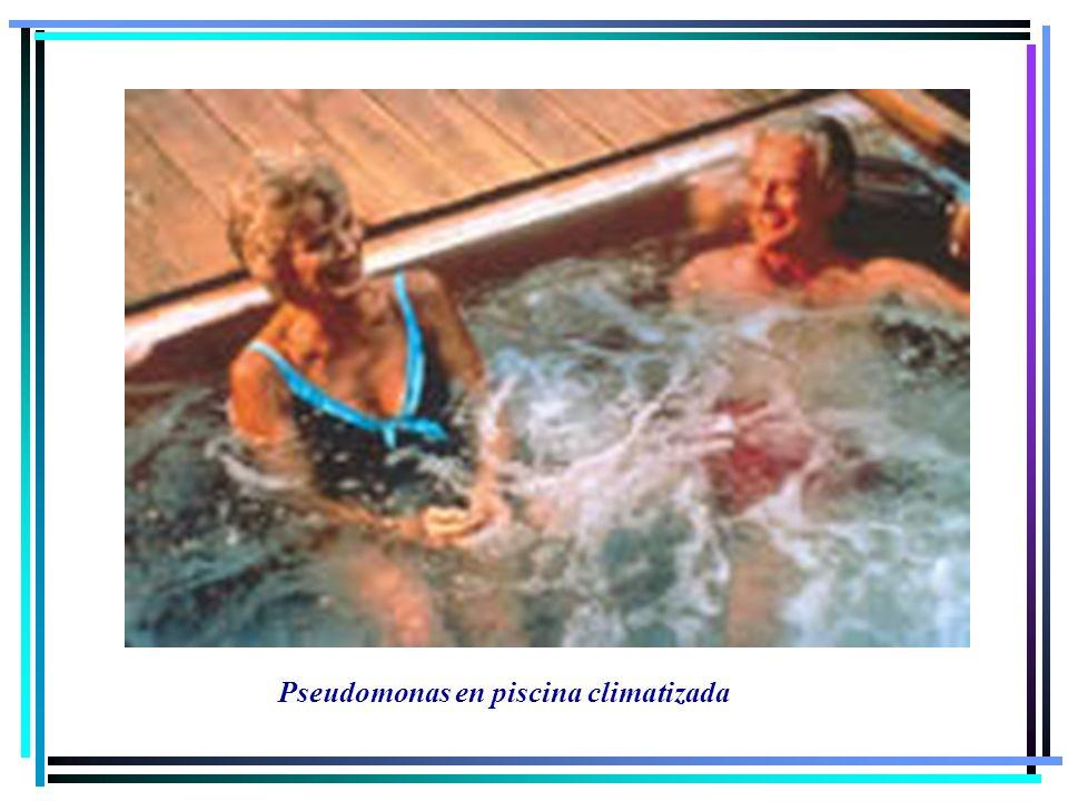 Pseudomonas en piscina climatizada