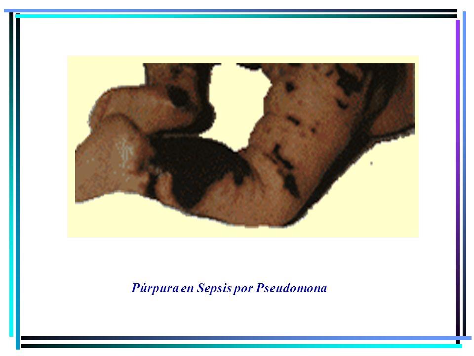 Púrpura en Sepsis por Pseudomona