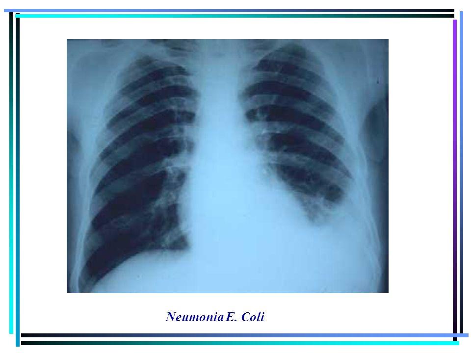Neumonia E. Coli