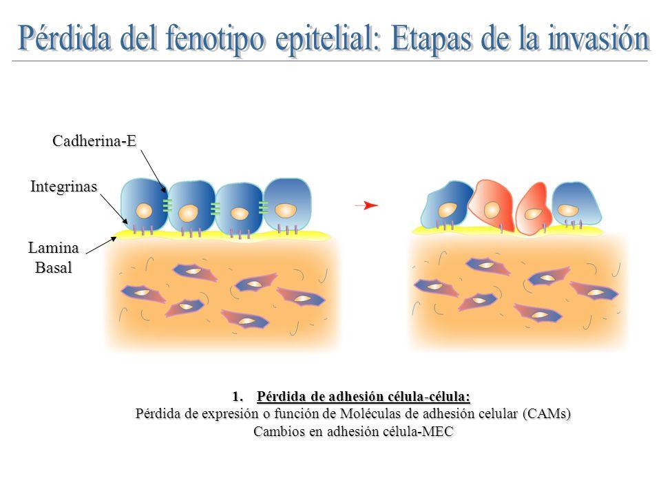 Mecanismos de pérdida de Cadherina-E en TEM/progresión tumoral 1.Regulación expresión del gen Cadherina-E: Mutaciones/regulación transcripcional Mutaciones/regulación transcripcional 2.