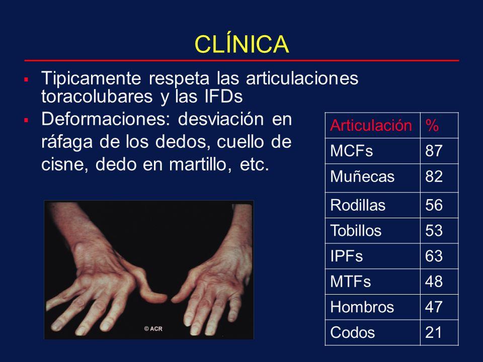 CLÍNICA Tipicamente respeta las articulaciones toracolubares y las IFDs Deformaciones: desviación en ráfaga de los dedos, cuello de cisne, dedo en martillo, etc.
