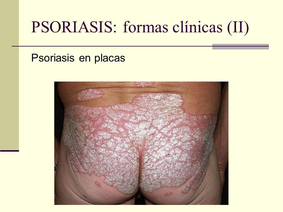 PSORIASIS: formas clínicas (II) Psoriasis en placas