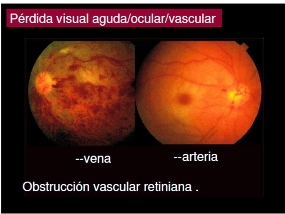 Lesión del nervio óptico.Disminución de A.V. y defecto campimétrico.