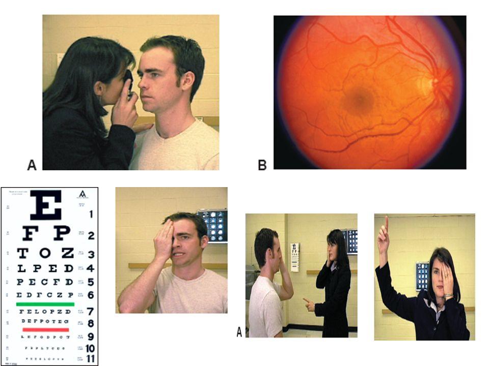 Ahora … despierten : Vamos al pintarrón entre todos a cambiar la dinámica de clase: Dictado y respuesta de signos y síntomas oculares.